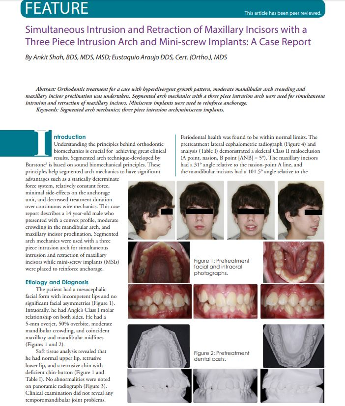 Mini crew Implants by Dr. Ankit Shah - Justin Dental and Braces